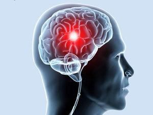 Нарушения работы головного мозга