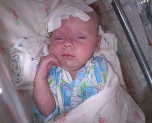 Диагноз дцп у новорожденных