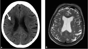 Признаки изменения головного мозга