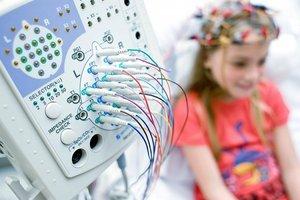 ЭЭГ для диагностики эпилепсии